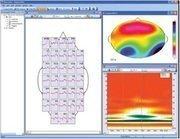 Анализатор-монитор биопотенциалов головного мозга «Нейровизор-БММ» (клинический комплект)