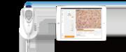 Видеодерматоскоп Aramo Smart Wizard ASW-300, диагностика кожи и волос