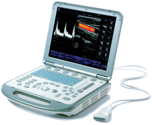 Mindray M5 Портативная ультразвуковая диагностическая система (УЗИ) среднего класса