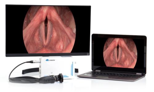 Портативная система эндоскопической визуализации DS.Vision SD USB